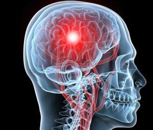 активация разных участков мозга при фобиях